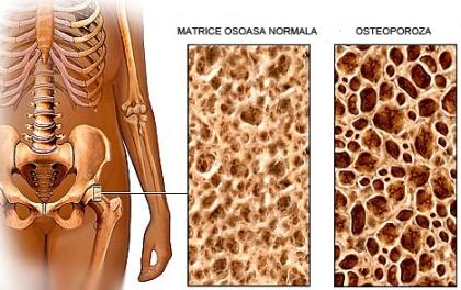 Simptomele osteoporozei